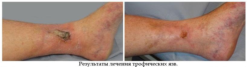 как лечить тропическая язва на ноге фото