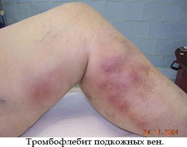 Начальная форма псориаза как лечить