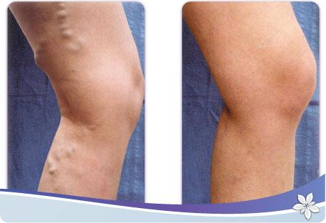 Полный обзор варикоза вен на ногах причины лечение прогноз