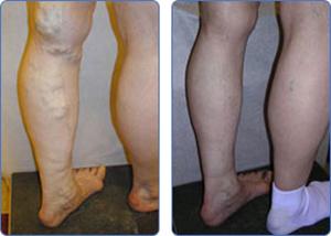 Что такое варикоз вен на ногах причина