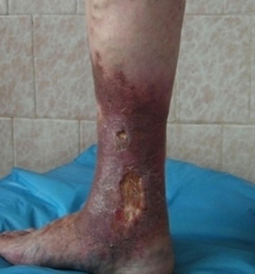 Лечение варикоза лазер или операция