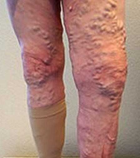 Варикозная болезнь - что будет если ее не лечить