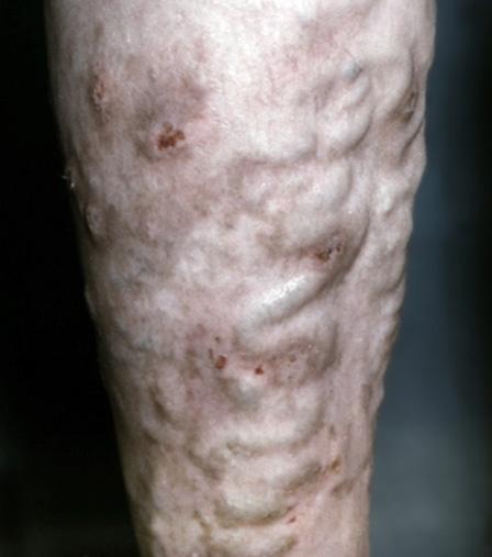Что делать если варикоз на ногах