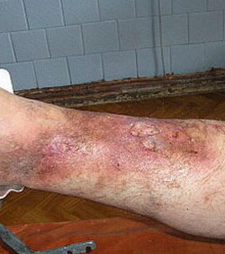 Как лечить варикоз на ногах у мужчин