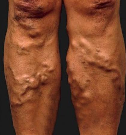 Дарсонваль в лечении варикоза