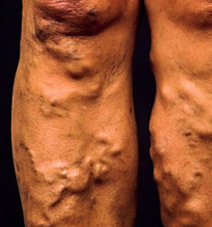 Самомассаж ног от варикозного расширения вен