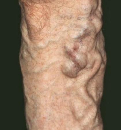 Питание при варикозе вен на ногах нужные и вредные продукты
