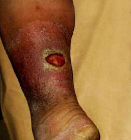 Варикоз вен на ногах лазерная операция