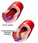 Лечение облитерирующего атеросклероза в москве