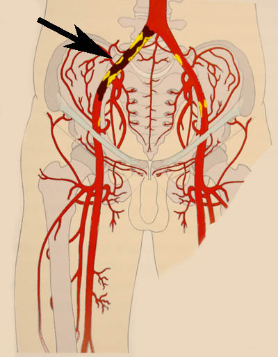Атеросклероз ног – не приговор: мы обязательно вам поможем! С ...