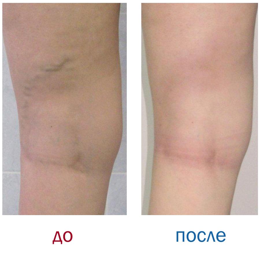 как лечить варикоз ног
