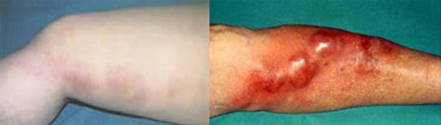 Симптомы тромбофлебита